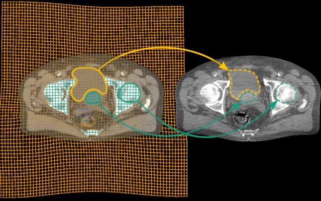 Links CT (Bestrahlungsplan), rechts CBCT-Aufnahme kurz vor der Bestrahlung; nach der Registrierung können Objekte des Bestrahlungsplans automatisch im CBCT erkannt werden.